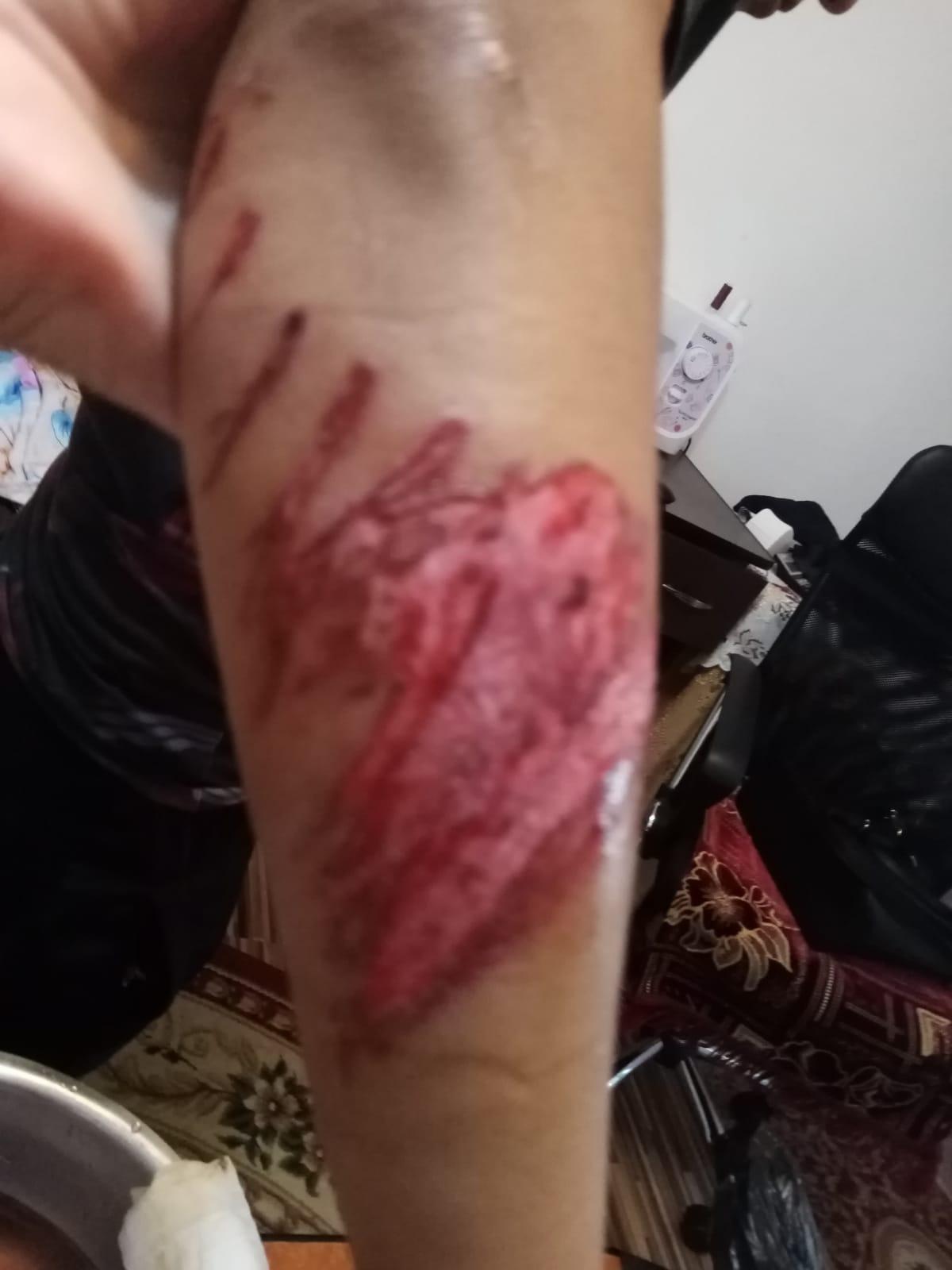 Grup de sportivi buzoieni, atacat cu o motocoasă de un individ băut. S-a întâmplat într-o stațiune de pe Valea Prahovei